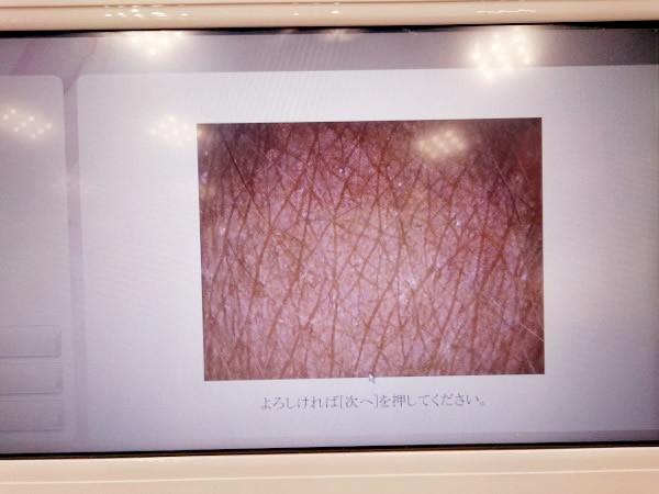 ライスパワーショップ肌診断
