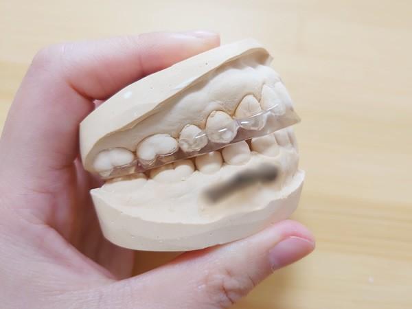 顎関節症・歯ぎしり対策マウスピース
